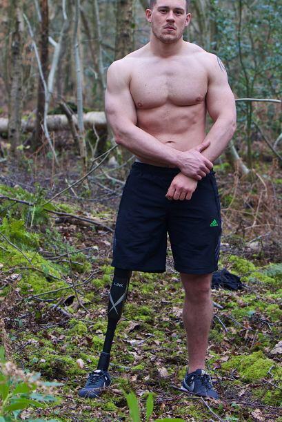 Jack Eyers vive en Dorset, Reino Unido y perdió su pierna a los 16 años.
