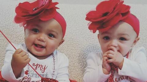 Kalani y Jarani, mellizas de Illinois que nacieron con diferente color d...