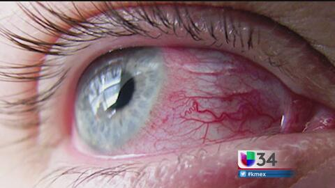 Blefaritis, una enfermedad poco diagnosticada