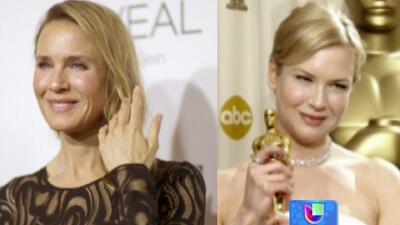 Renée Zellweger respondió a las criticas que generó el cambio en su rostro