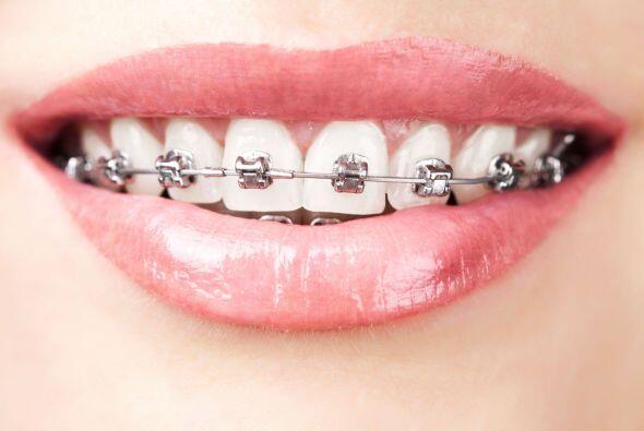 ¿Dientes chuecos? La Clínica Mayo explica que la ortodonci...