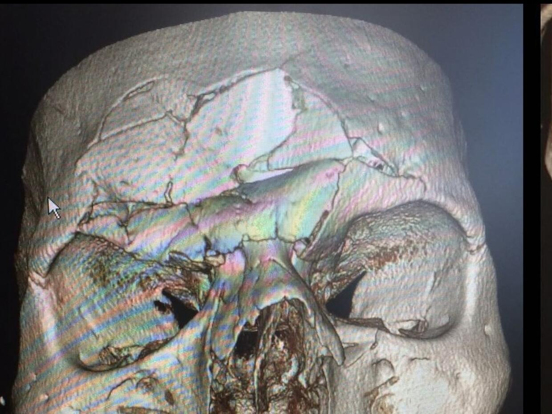 Evangelista 'Cyborg' Santos fue al quirófano 11 días despu...