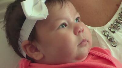 Bebé de dos meses vive las secuelas del virus del Zika