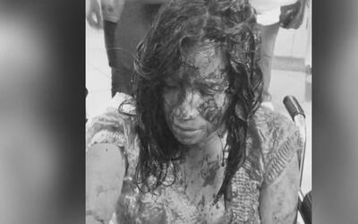 Bañada en sangre, mujer llegó a un hospital en busca de ayuda y aseguró...