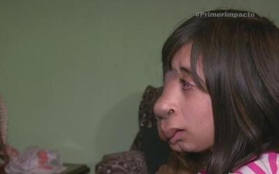 Niña con una deformidad en su rostro es símbolo de valentía