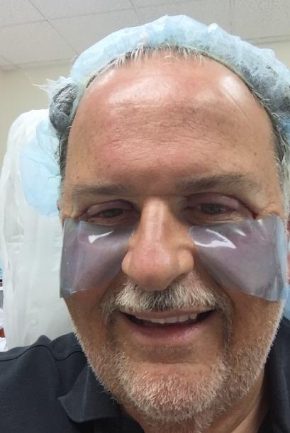 Aquí nos mostró las imágenes de su rostro una hora después de la cirugía.