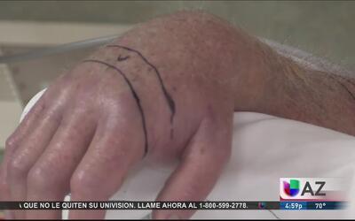 Hombre mordido por cascabel termina en hospital