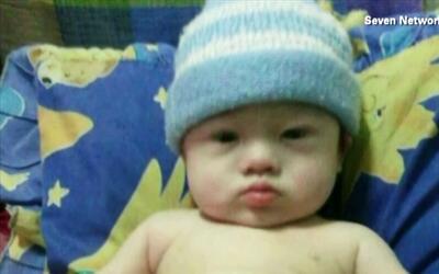Un bebé fue abandonado por sus propios padres por tener síndrome de Down