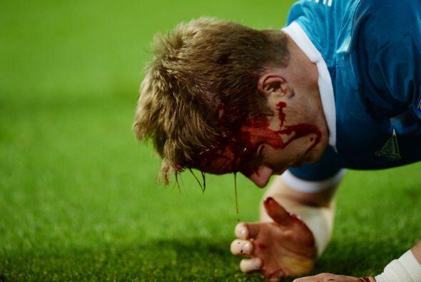 Pero cuando ya se jugaban los minutos finales del partido sucedió...
