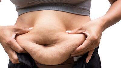 La grasa abdominal aumenta el riesgo cardiovascular, ¿mito o realidad?