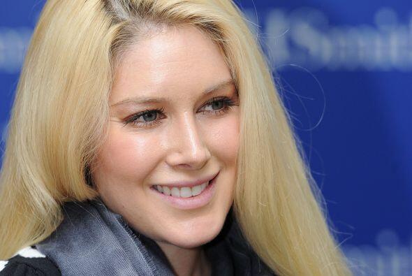 A pesar de las diez mil cirugías que se hizo Heidi Montag, no puede comp...