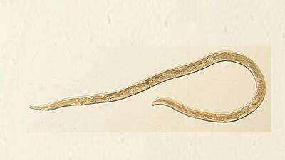 Thelazia gulosa o thelaziosis, una larva que la mosca de la fruta deposi...