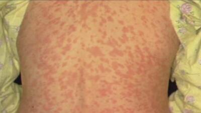 California, uno de los estados en alerta por mayor número de casos de sarampión