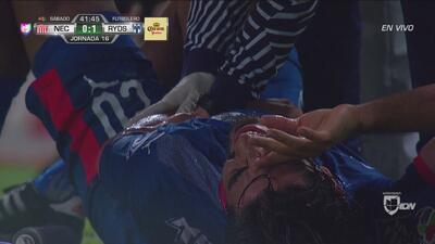 ¡Pizarro casi se lesiona a lo Alejandro Arribas!