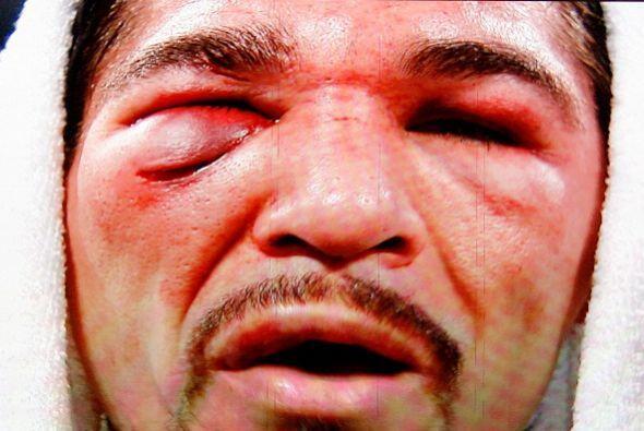 Antonio Margarito y su máscara para ir a espantar a Filipinas des...