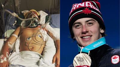 Mark McMorris, el atleta que derrotó a la muerte para obtener la gloria olímpica