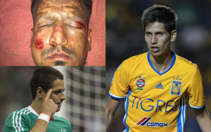 Las lesiones más insólitas del fútbol mundial lesiones-insolitas.jpg