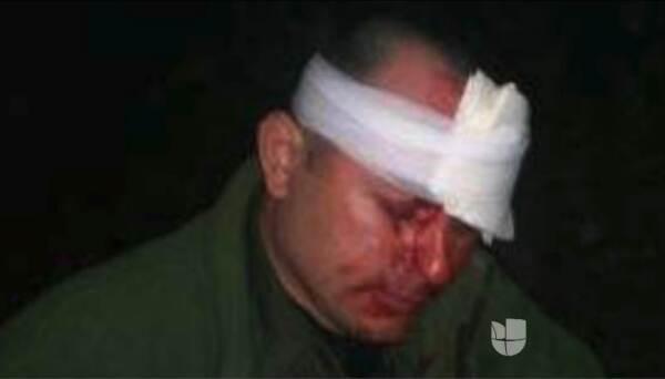 Agente de la Patrulla Fronteriza herido por una piedra que le habría lan...