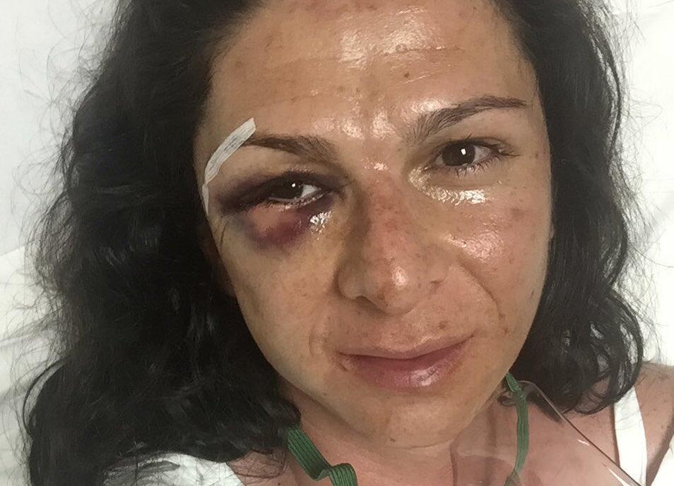 Golpes en la cara de la senadora mexicana Ana Gabriel Guevara