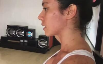 "Diosa Canales justifica la golpiza a ex reina de belleza: ""Le dije sus v..."