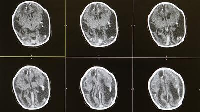 ¿Cuáles son las principales discapacidades que causa un derrame cerebral?