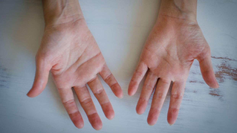 """""""Amo mis manos, con sus inflamaciones, callos y dolores intensos""""."""