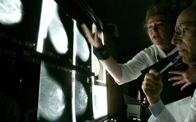 Surge una nueva esperanza para tratar ciertos tipos de cáncer