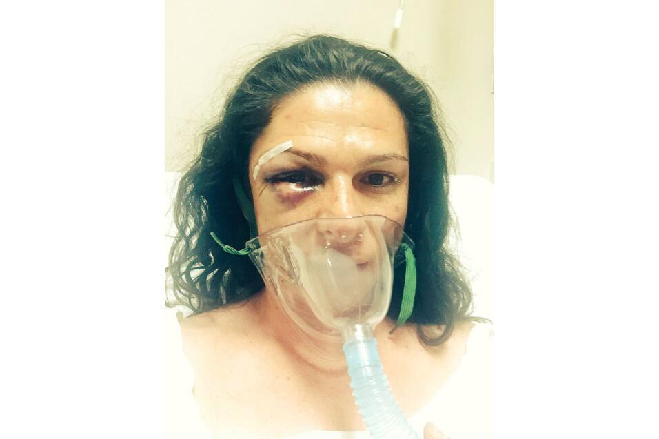 La exvelocista denunció la agresión y mostró esta foto tras su cirugía.