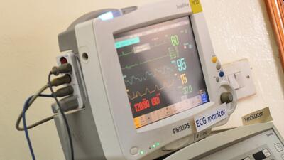 Qué son los latidos cardíacos irregulares y cómo identificarlos