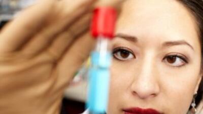 Esten tres centros en Houston donde puedes realizarte la prueba del VIH...