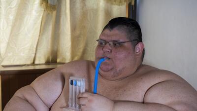 El sorprendente camino hacia la sanación del hombre más gordo del mundo