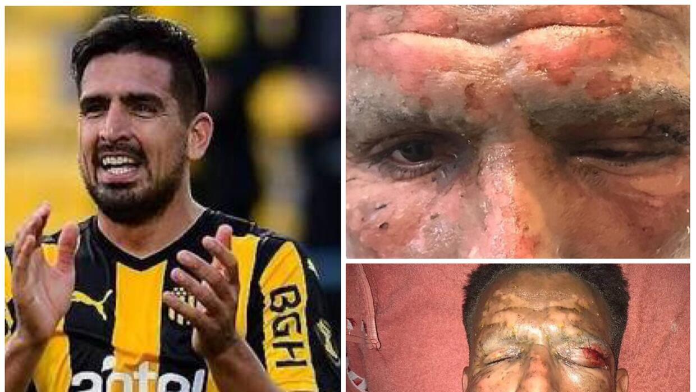 Lucas Viatri sufre quemaduras con pirotecnia dsgnn4qumaafyd7.jpg