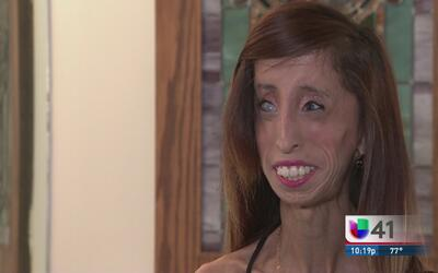 Su enfermedad la llevó a luchar contra el bullying