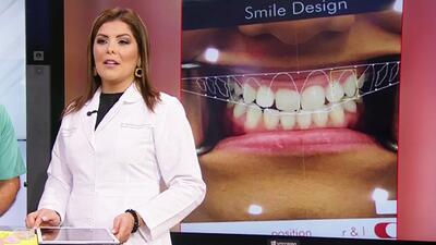 Sonrisa para presumir: la técnica que te ayudará a estilizar y mejorar la apariencia de tus dientes