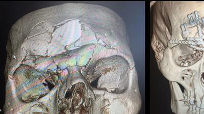 Evangelista 'Cyborg' Santos salió bien de la cirugía en el cráneo