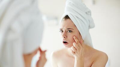 Descubre qué alimentos debes comer para evitar el acné