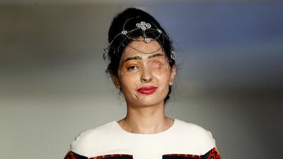 Una modelo desfigurada con ácido abrió la semana de la moda en Nueva York