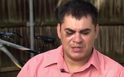 Investigan si las palizas que recibieron un hondureño y una familia mexi...