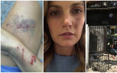 Juliana Galvis salió herida y le tomó cuatro horas llegar...