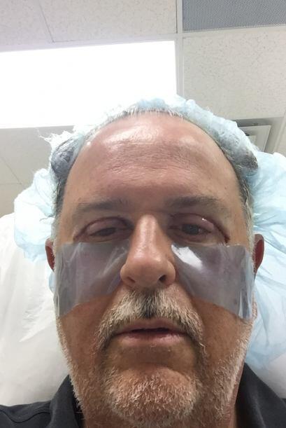 Raúl contó que sólo le anestesiaron los párpados, por lo que él estuvo c...