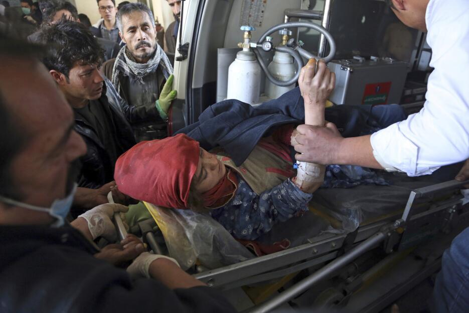 Esta mujer herida durante el ataque en Kabul está siendo trasladada en...