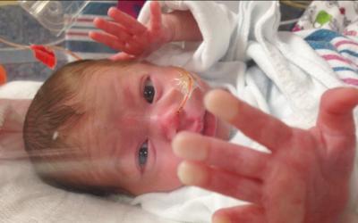 Con los bebés prematuros cada día que pasa es una batalla...