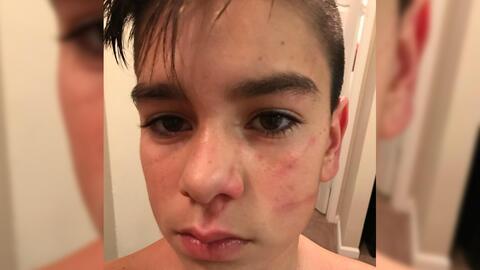 Justin Zambrano, tras una agresión de un compañero de escu...