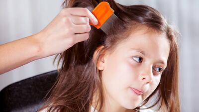 Cuidado con los piojos: por qué se transmiten tan fácil y cómo proteger a tus hijos