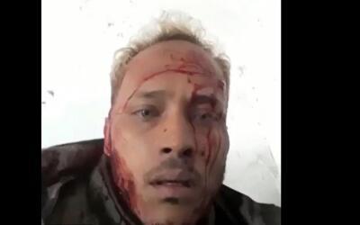 El piloto Óscar Pérez, con la cara ensangrentada, en uno d...