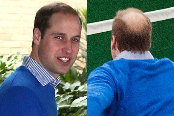 El Duque de Cambridge ya está sufriendo las consecuencias de la edad......