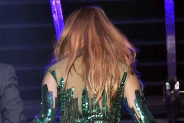 'La diva del Bronx' dejó ver durante un concierto que sus piernas ya no...