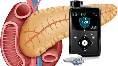 El páncreas de las personas con diabetes tipo 1 produce poca o ninguna i...