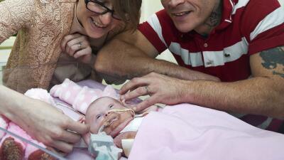 La mayoría de los niños que padecen esta malformación no llegan a nacer,...