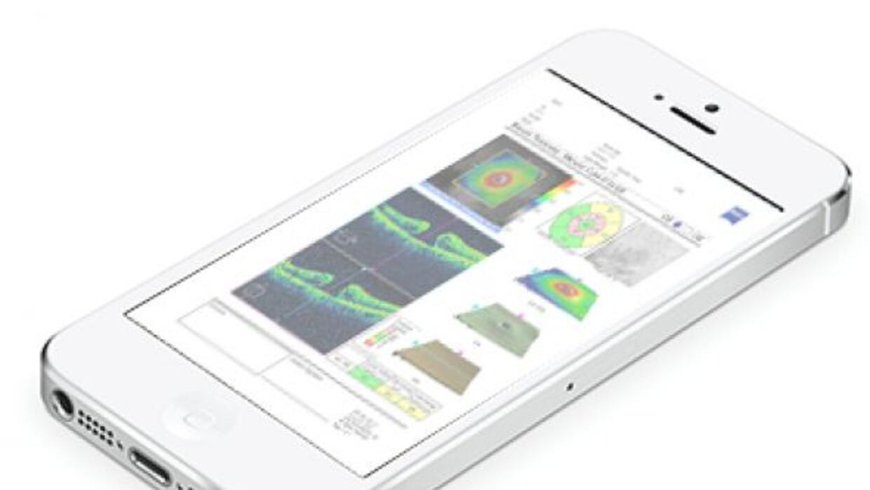 Ahora los iPhones pod´ran hacer pruebas oftalmológicas para detectar gla...